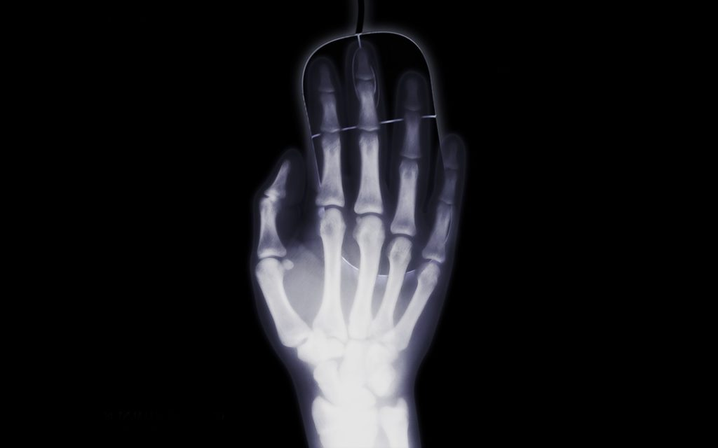 hand xray mouse